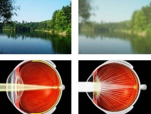 помутнение зрения при катаракте