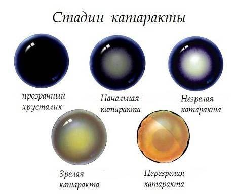 стадии катаракты