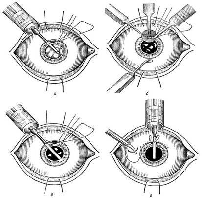 операция на хрусталик глаза