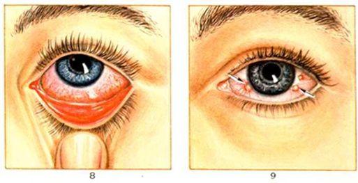 поражение глаз