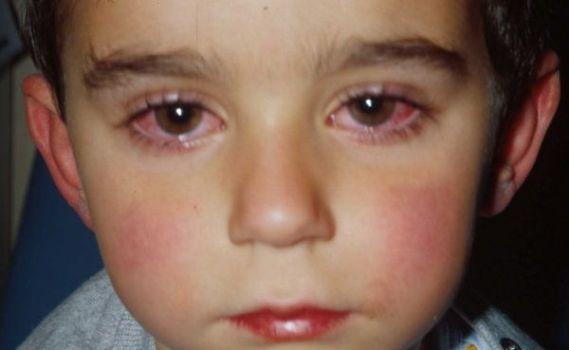 коньюктивит у детей что говорит комаровский
