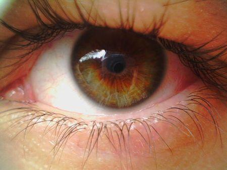 признаки кровоизлияния в глаза