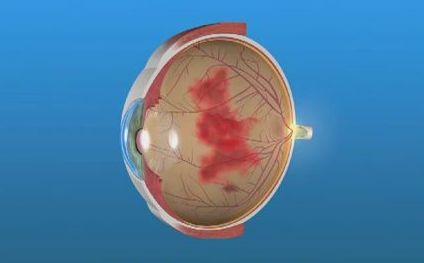глазное кровоизлияние