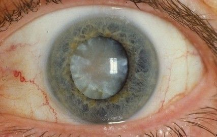 глаз пораженный катарактой