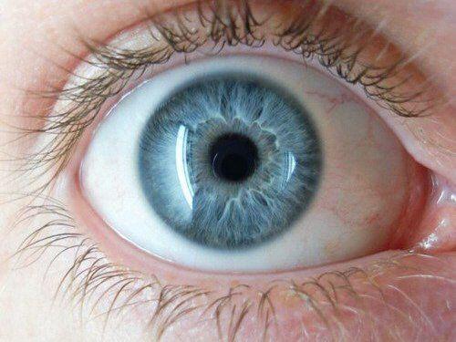 здоровый глаз без мошек