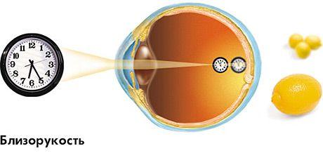 близорукость глаз