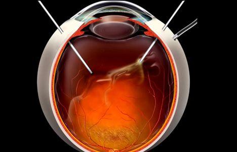 хирургическое вмешательство в глаз