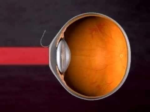 зрение приходит в норму
