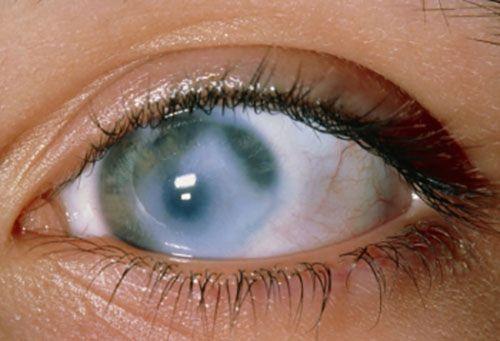 симптомы открытоугольной глаукомы