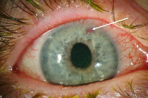 закрытая глаукома