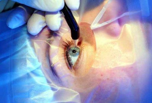 хирургическое вмешательство при глаукоме