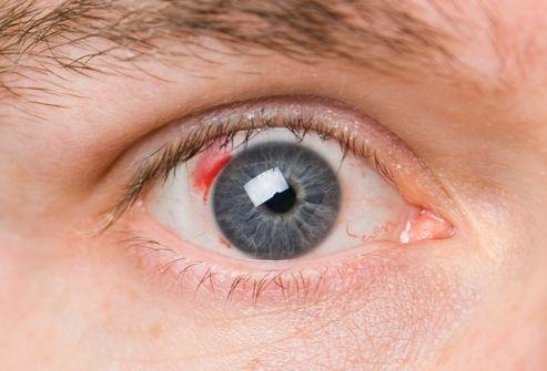 кровоизлияние в глаза