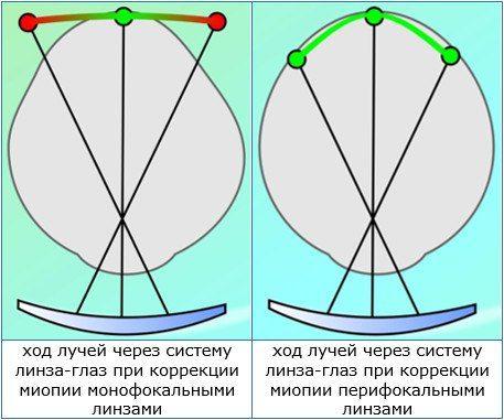 ход лучей через систему линза глаз