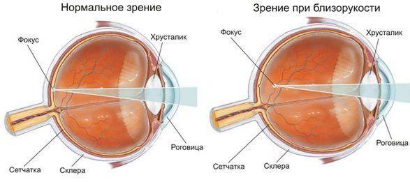 глаз при нормальном зрении и при близорукости