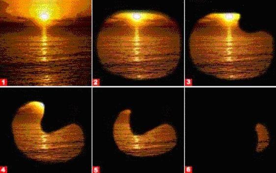как развивается глаукома