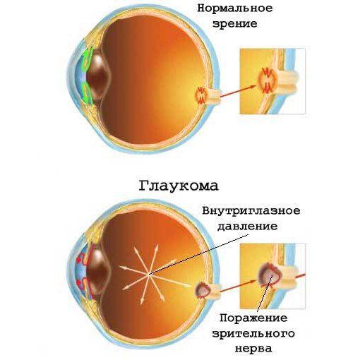 нормальное зрение и с глаукомой