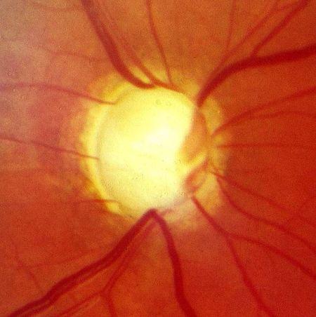 глазное яблоко при глаукоме