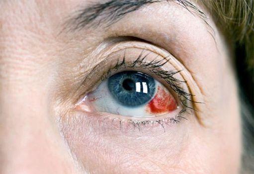 при заболевании глаза
