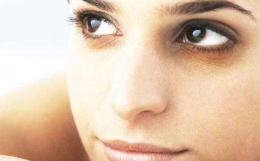 темные круги под глазами у женщины