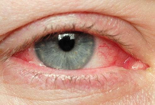 глаз покраснел