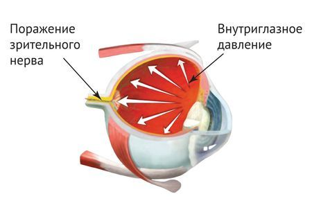 побочные эффекты внутриглазного давления