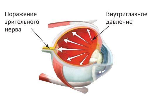 поражение глазного нерва