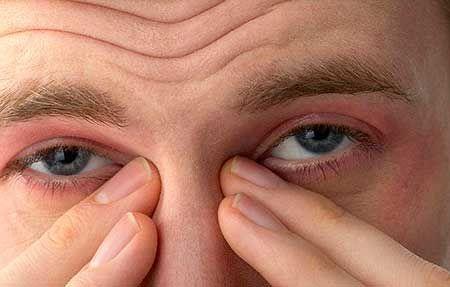 синдром сухих глаз