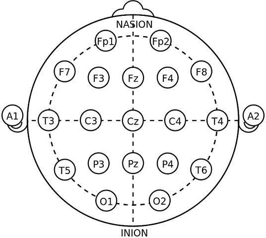 схема электродов