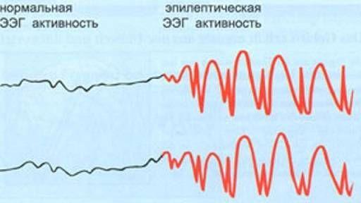 нормальная и эпилептическая ээг активность