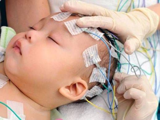 ээг головного мозга у младенцев