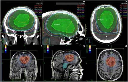 компьютерная томография мозга