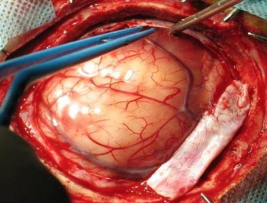 глиобластома в черепной коробке