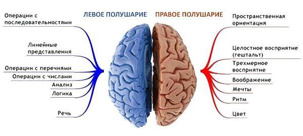 как происходит инсульт правого полушария