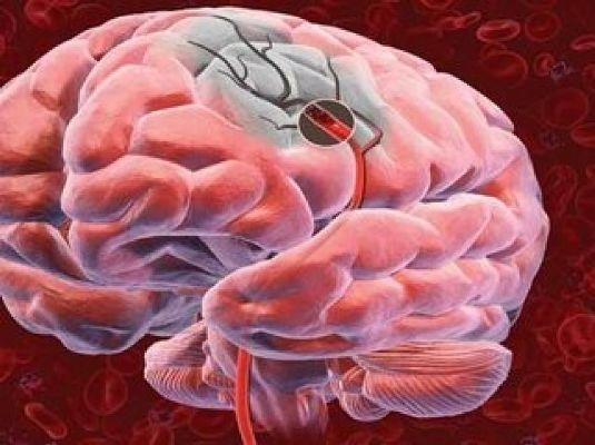 приступ инсульта мозга
