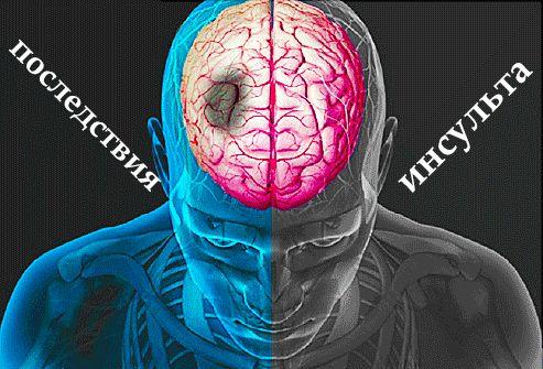 последствия инсульта в головном мозге