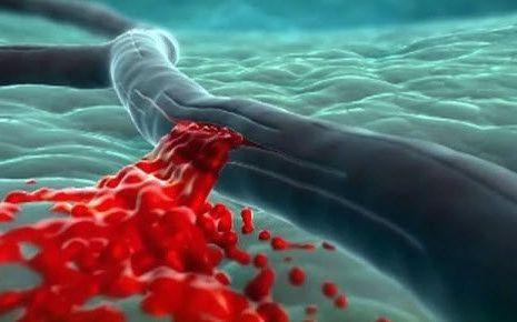 кровотечение артерий мозга