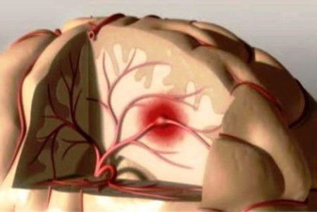 осложнение в головном мозгу