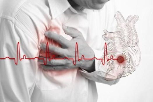 осложнения при инфаркте миокарда