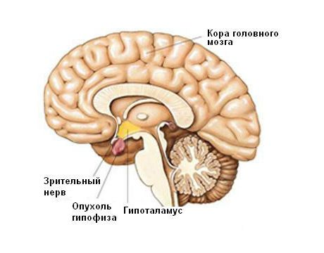 мозг в разрезе