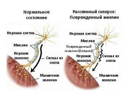 нормальное состояние и при рассеянном склерозе