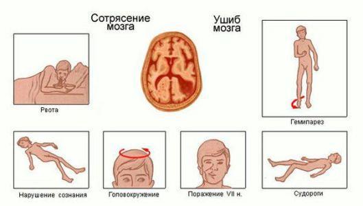 сотрясение ушиб мозга