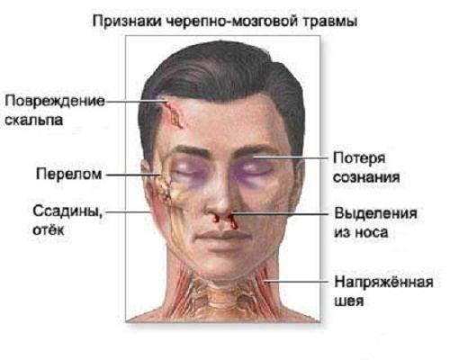 признаки черепно мозговой травма