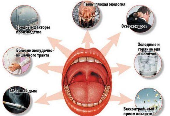 Тонзиллит у взрослых лечение в домашних условиях