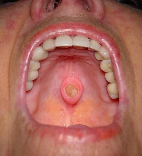 опухоль в горле