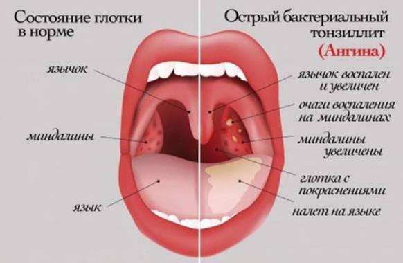 вид горла при ангине