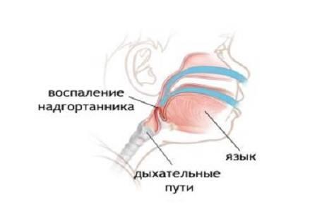 эпиглоиттит