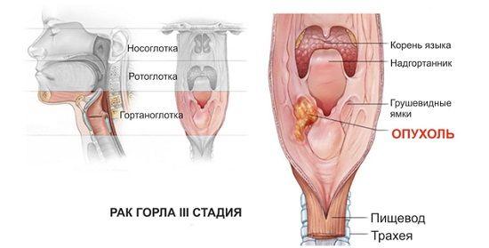 рак горла 3 стадия