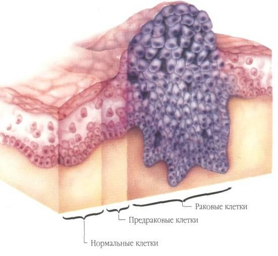 стадии рака языка