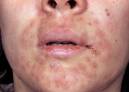 сифилитическая сыпь на лице