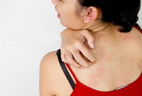 дерматит на спине